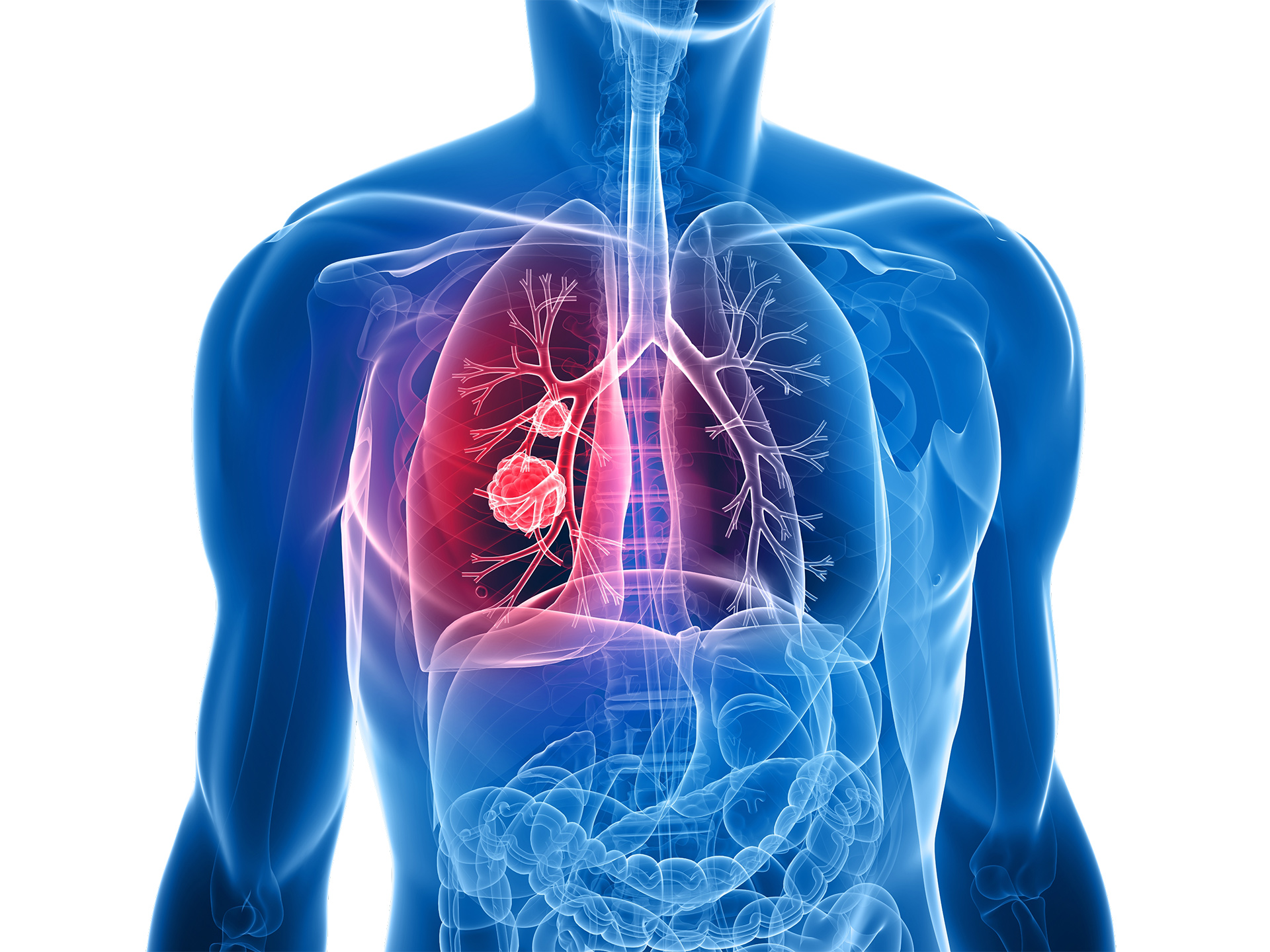 Lung_screening_IDNA